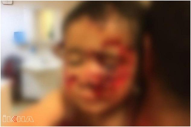 Başıboş sokak köpekleri saldırdıkları 6 çocuğu yaraladı
